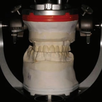 Advanced fixed prosthodontics and functional occlusion residency